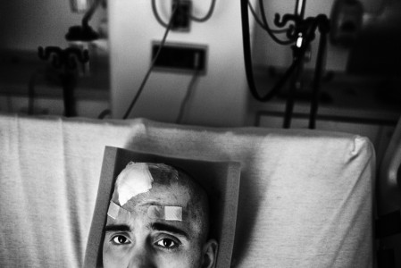 Christopher Capozziello, After Brain Surgery. 2010.